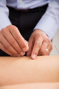 tips-dry-needling-acupuncture-200x300-min