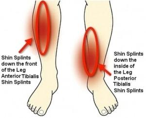 tips-shin-splints-300x242-min
