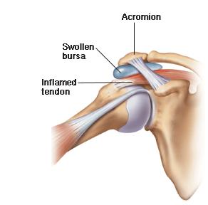 tips-shoulder-impingement-picture-min