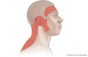 tips-tension-headache-300x196-min